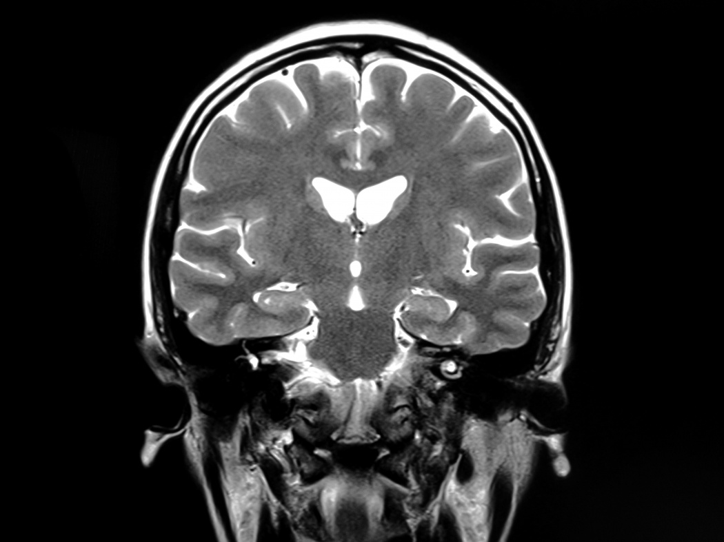 Brain Lesions and Spine Lesions Can Be Missed