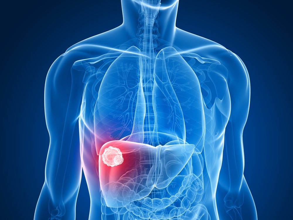 benign cancer liver