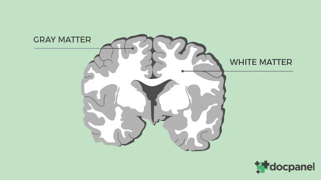 white_matter_disease.jpg
