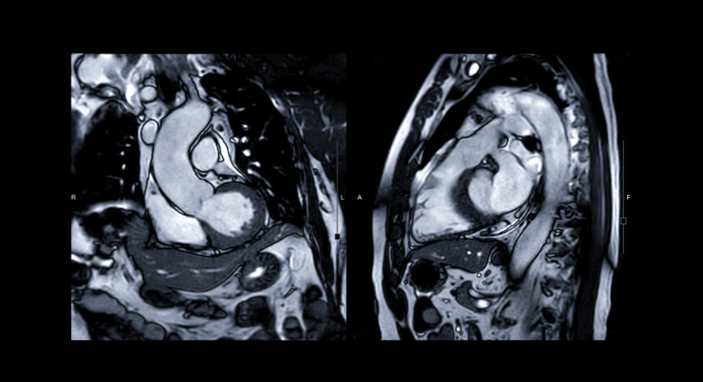 how_any_imaging_center_can_offer_cardiac_mri