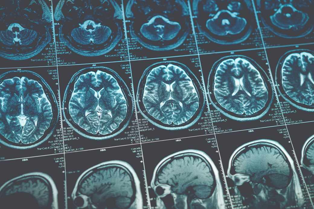 Early Detection Is Key for Multiple Sclerosis Treatment