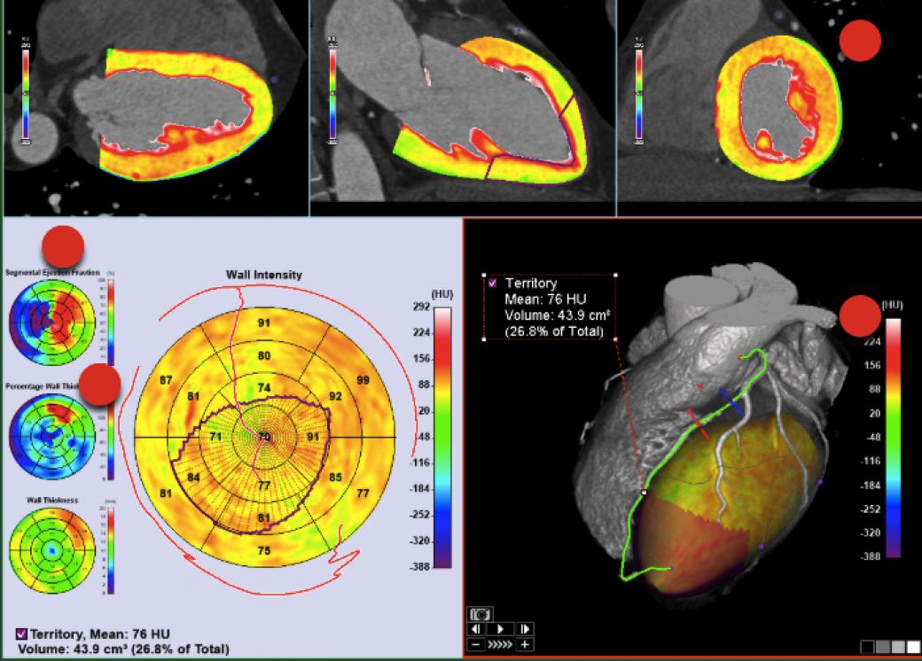 Cardiovascular CT and MRI Advanced Imaging