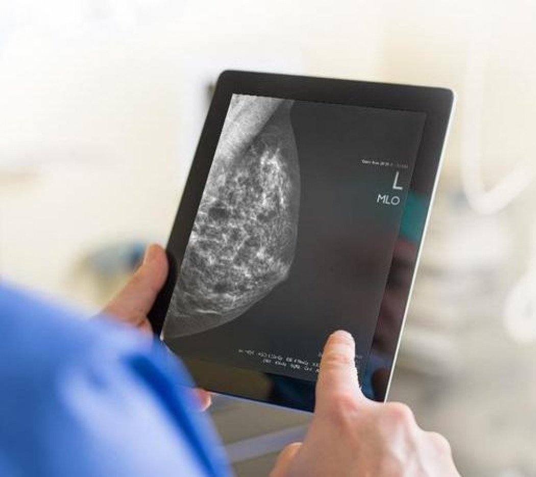 A Better Way to Do Breast Radiology