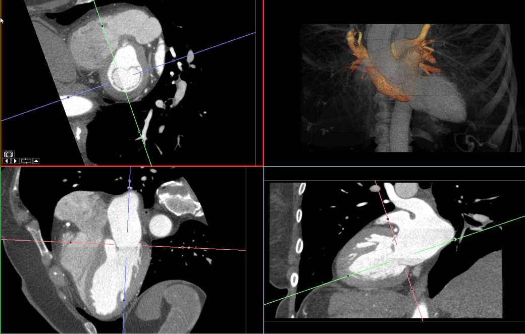 Mitral Valve Surgical Planning