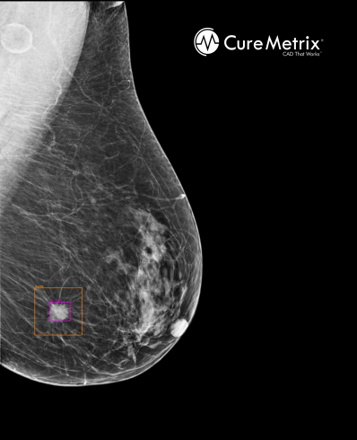 AI Supported Mammogram Second Opinions